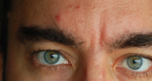 Are Hypothyroidism and acne connected man with acne